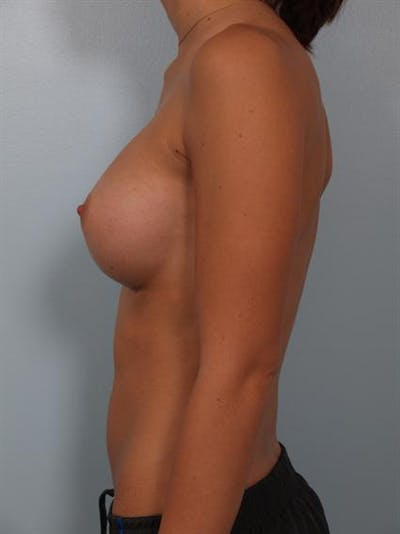 Breast Augmentation Gallery - Patient 1309997 - Image 4
