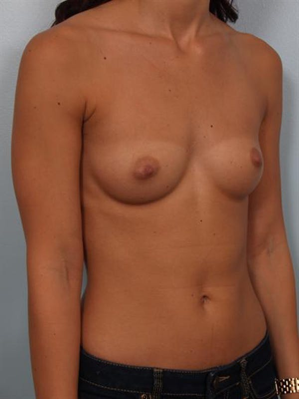 Breast Augmentation Gallery - Patient 1309997 - Image 5