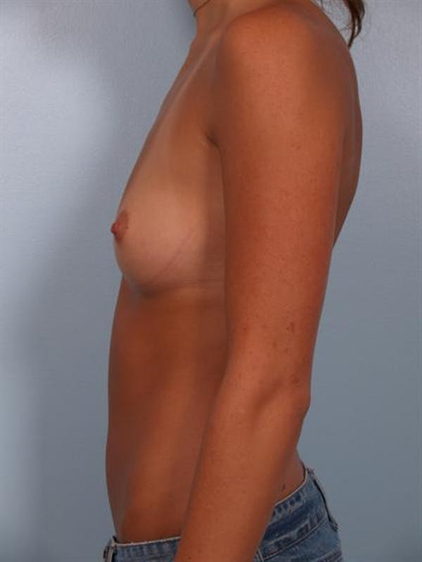 Breast Augmentation Gallery - Patient 1309999 - Image 5