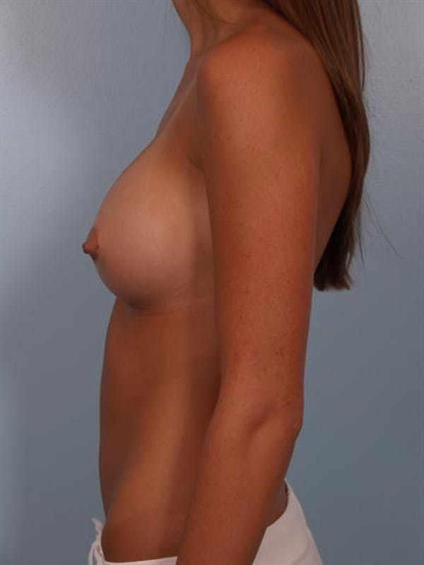 Breast Augmentation Gallery - Patient 1309999 - Image 6