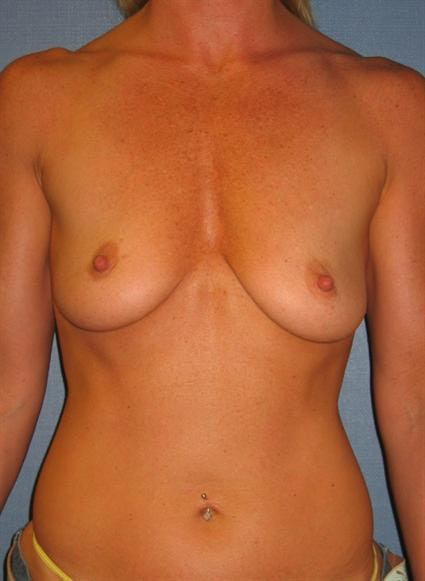 Breast Augmentation Gallery - Patient 1310000 - Image 1