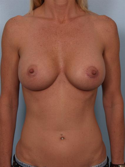 Image4 - Before and after image of Breast Augmentation by Dr. Cohen.