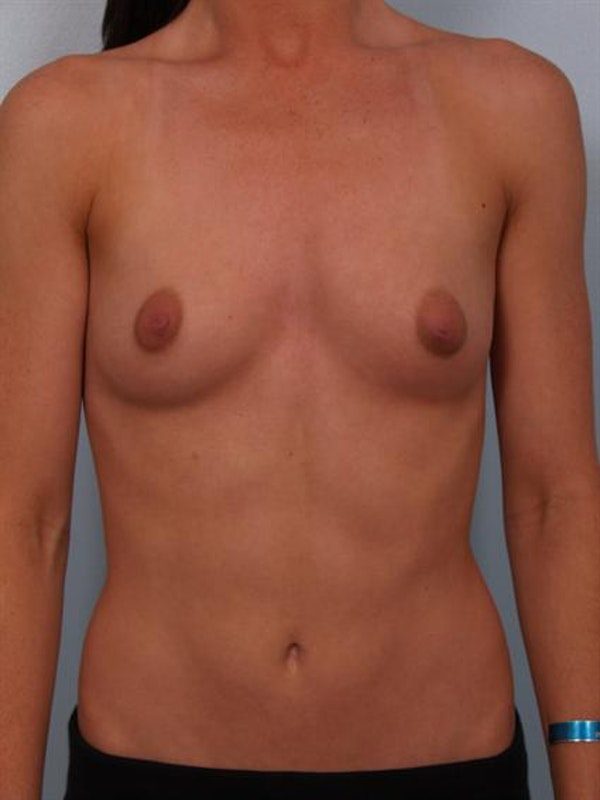 Breast Augmentation Gallery - Patient 1310002 - Image 1