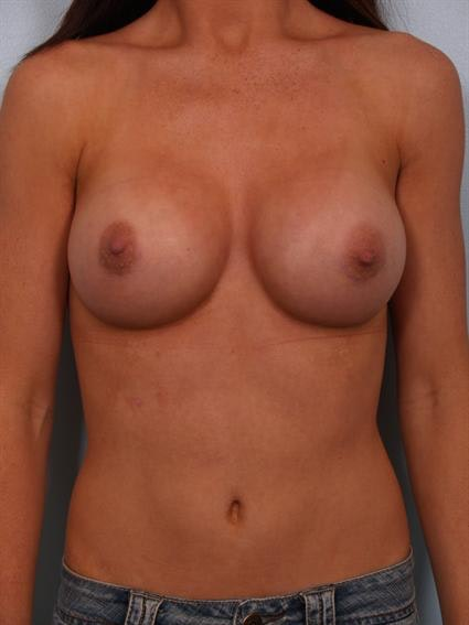 Breast Augmentation Gallery - Patient 1310002 - Image 2