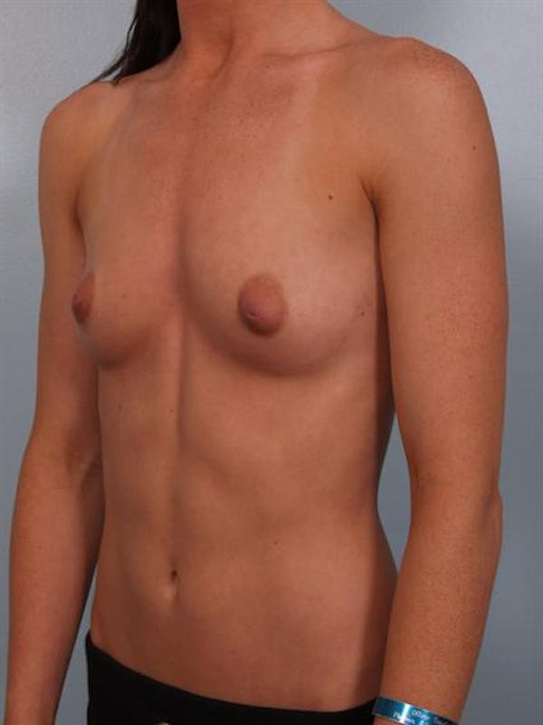 Breast Augmentation Gallery - Patient 1310002 - Image 3