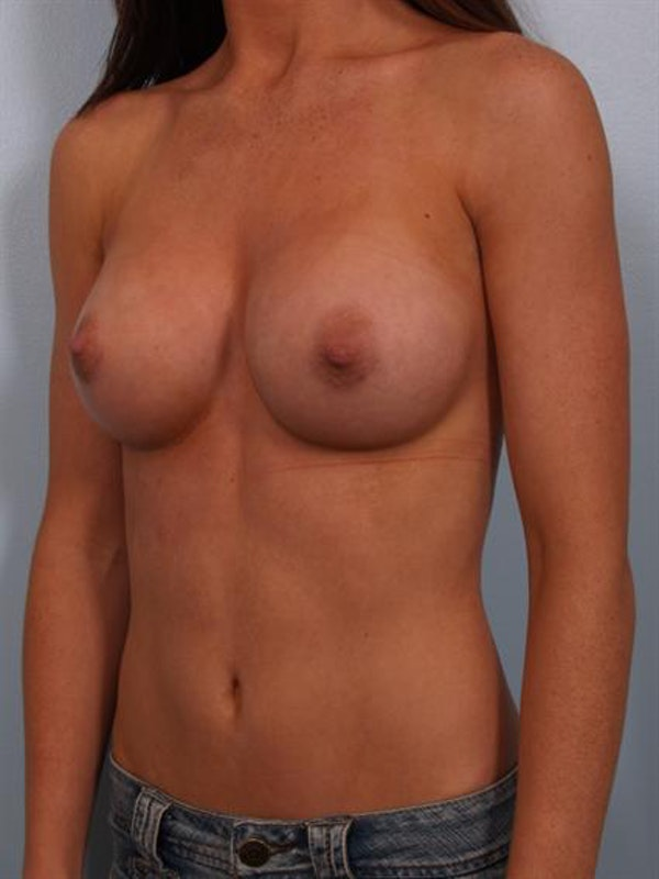 Breast Augmentation Gallery - Patient 1310002 - Image 4