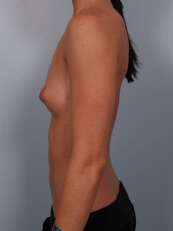 Breast Augmentation Gallery - Patient 1310002 - Image 5