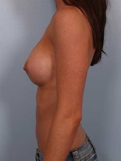 Breast Augmentation Gallery - Patient 1310002 - Image 6