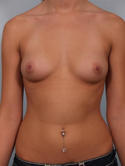 Breast Augmentation Gallery - Patient 1310003 - Image 1