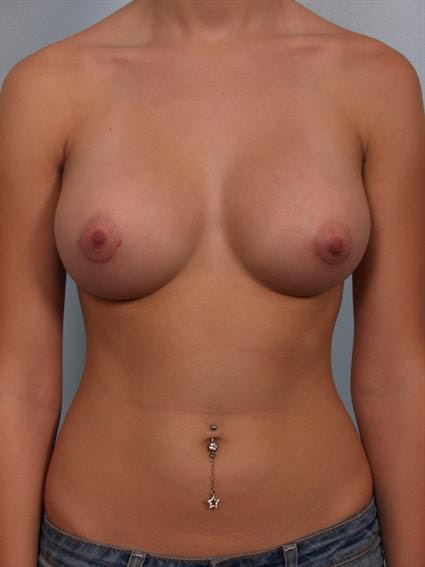 Breast Augmentation Gallery - Patient 1310003 - Image 2