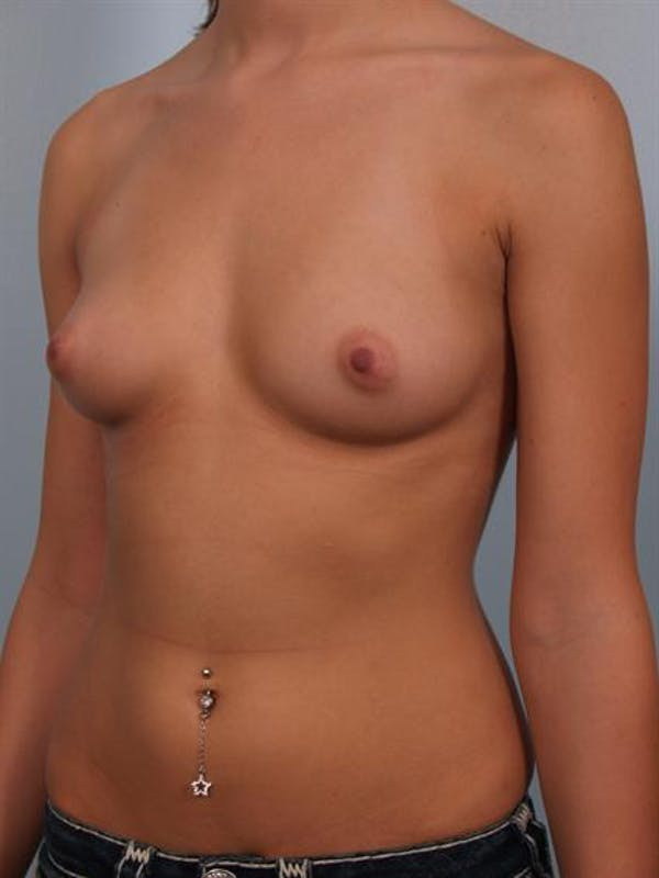 Breast Augmentation Gallery - Patient 1310003 - Image 3