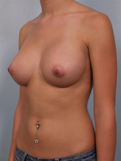 Breast Augmentation Gallery - Patient 1310003 - Image 4