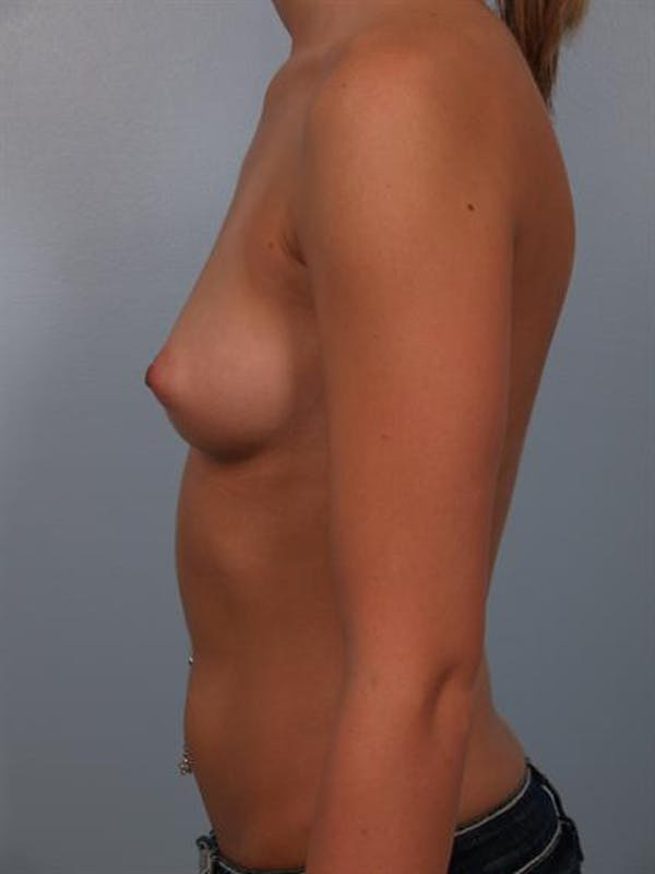 Breast Augmentation Gallery - Patient 1310003 - Image 5