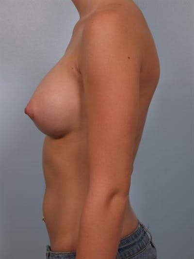 Breast Augmentation Gallery - Patient 1310003 - Image 6