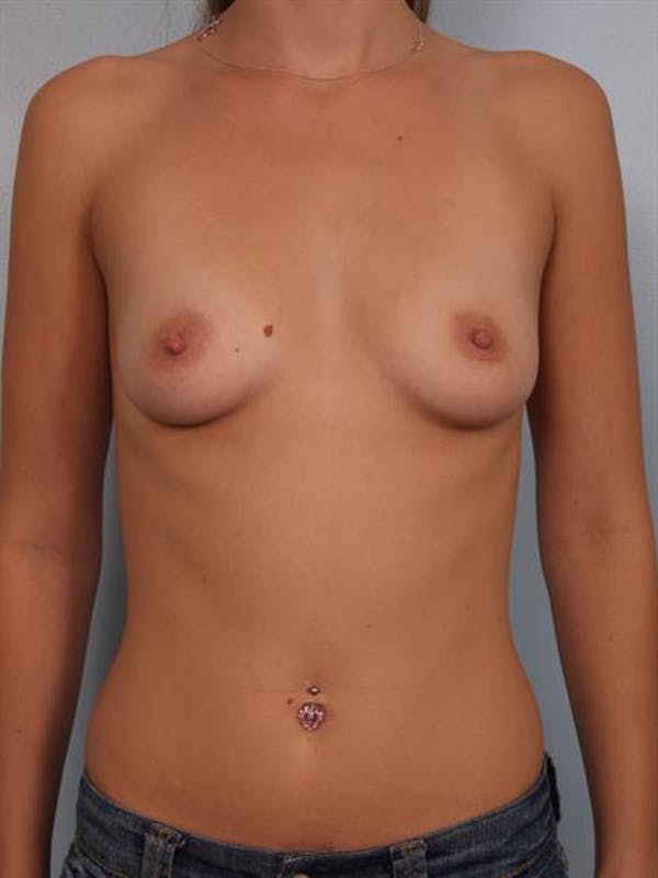Breast Augmentation Gallery - Patient 1310005 - Image 1