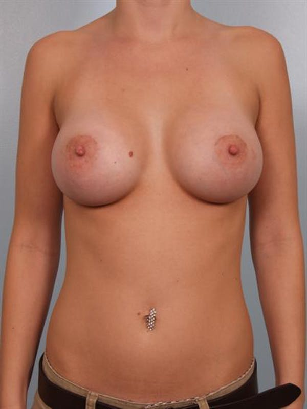 Breast Augmentation Gallery - Patient 1310005 - Image 2