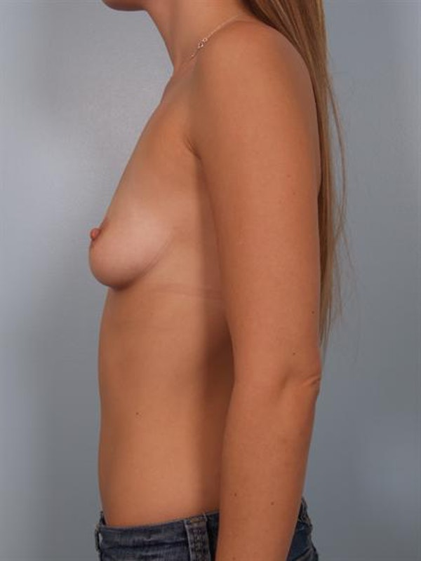 Breast Augmentation Gallery - Patient 1310005 - Image 3