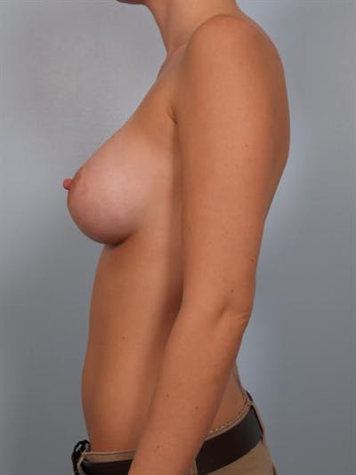 Breast Augmentation Gallery - Patient 1310005 - Image 4