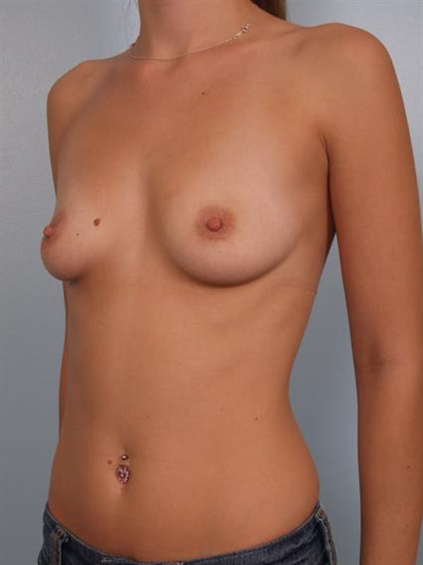 Breast Augmentation Gallery - Patient 1310005 - Image 5
