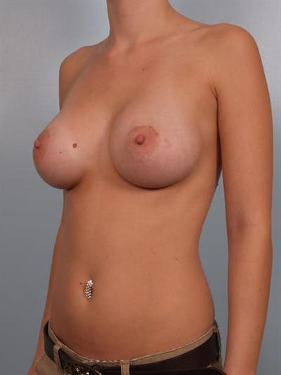 Breast Augmentation Gallery - Patient 1310005 - Image 6