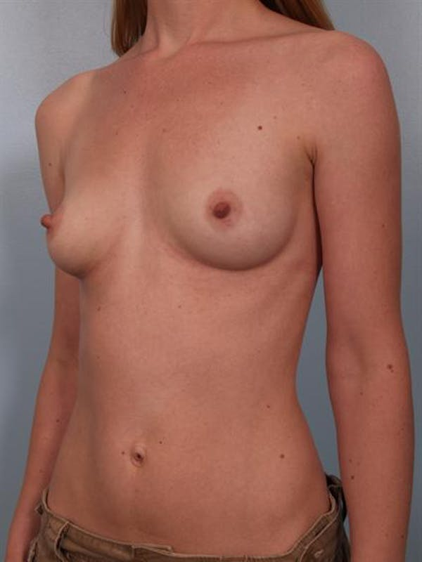 Breast Augmentation Gallery - Patient 1310012 - Image 1