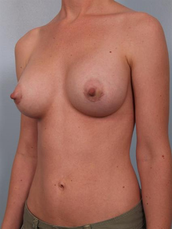 Breast Augmentation Gallery - Patient 1310012 - Image 2