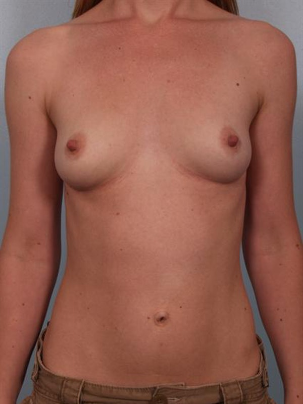Breast Augmentation Gallery - Patient 1310012 - Image 3
