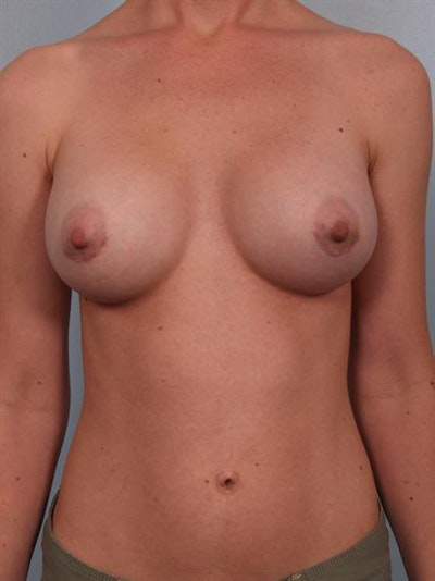 Breast Augmentation Gallery - Patient 1310012 - Image 4