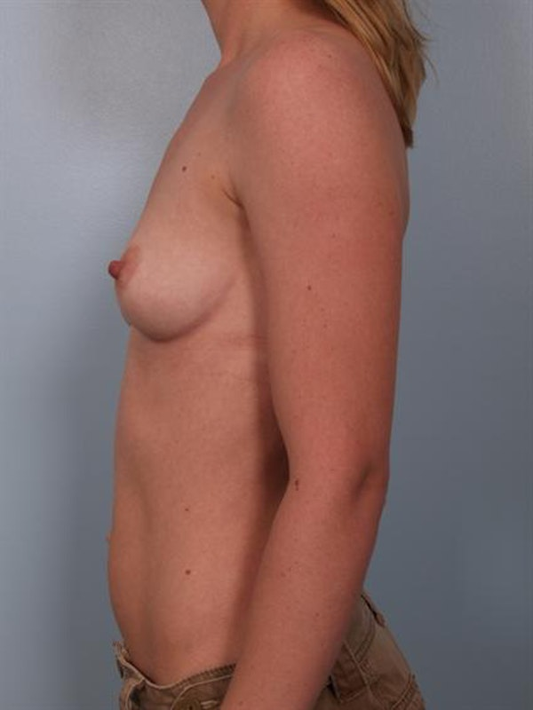 Breast Augmentation Gallery - Patient 1310012 - Image 5
