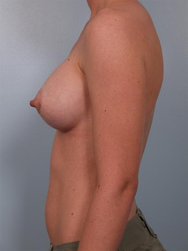 Breast Augmentation Gallery - Patient 1310012 - Image 6