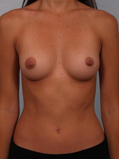 Breast Augmentation Gallery - Patient 1310015 - Image 1
