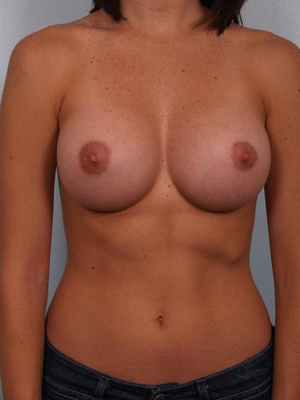 Breast Augmentation Gallery - Patient 1310015 - Image 2