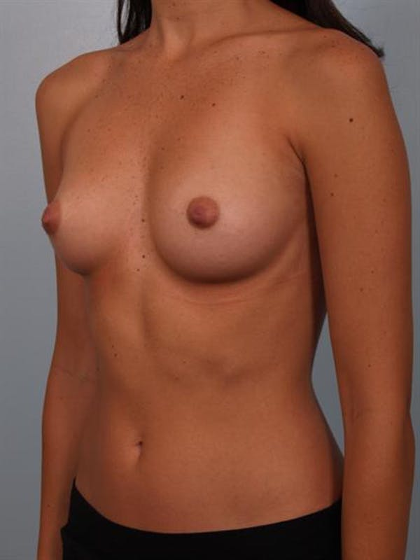 Breast Augmentation Gallery - Patient 1310015 - Image 3