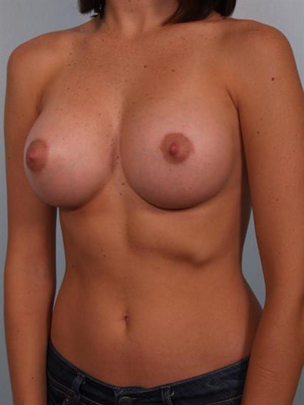 Breast Augmentation Gallery - Patient 1310015 - Image 4