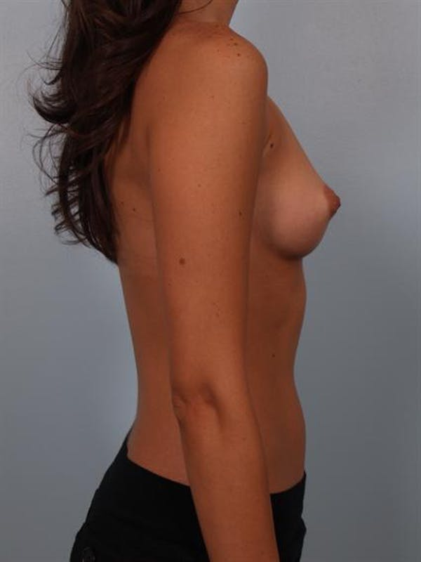 Breast Augmentation Gallery - Patient 1310015 - Image 5
