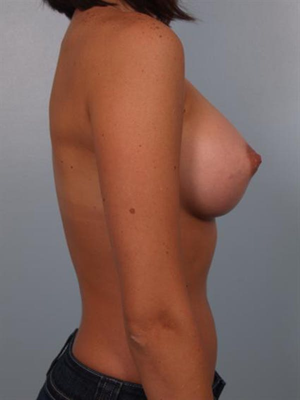 Breast Augmentation Gallery - Patient 1310015 - Image 6