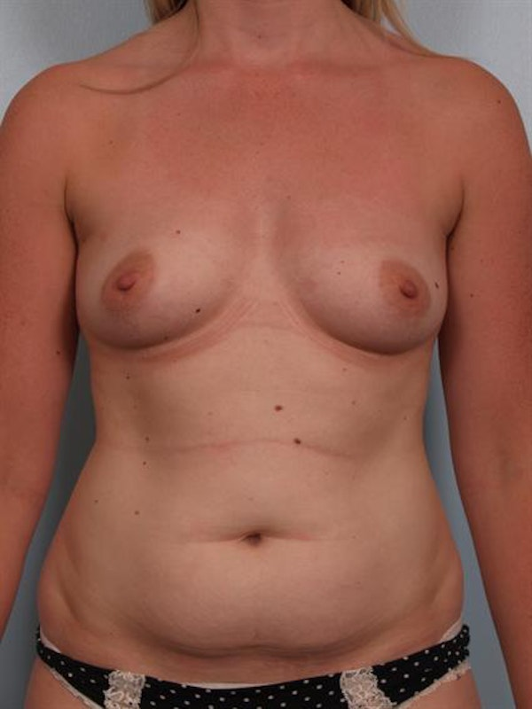 Breast Augmentation Gallery - Patient 1310016 - Image 1