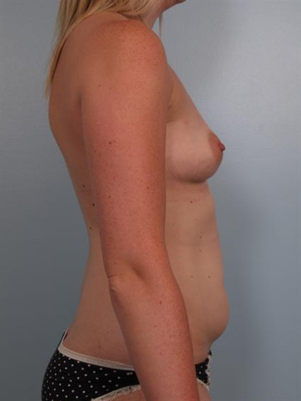 Breast Augmentation Gallery - Patient 1310016 - Image 3