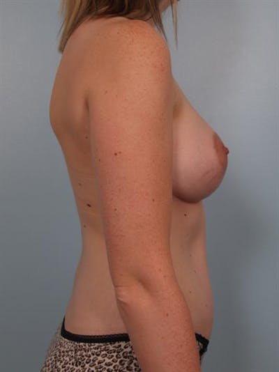Breast Augmentation Gallery - Patient 1310016 - Image 4