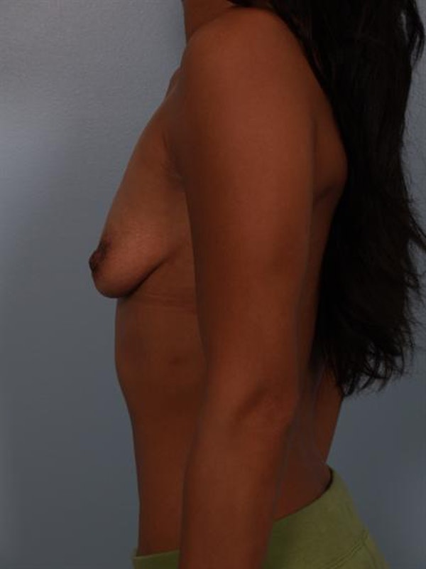 Breast Augmentation Gallery - Patient 1310017 - Image 7