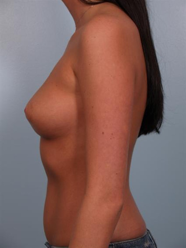 Breast Augmentation Gallery - Patient 1310018 - Image 1