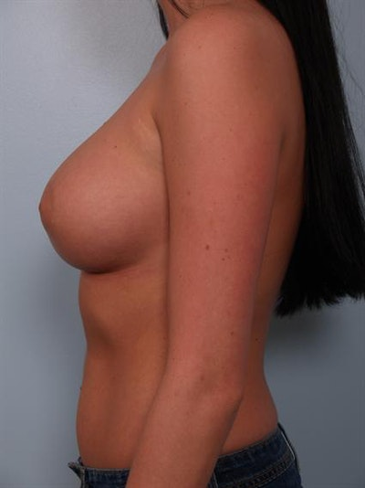 Breast Augmentation Gallery - Patient 1310018 - Image 2