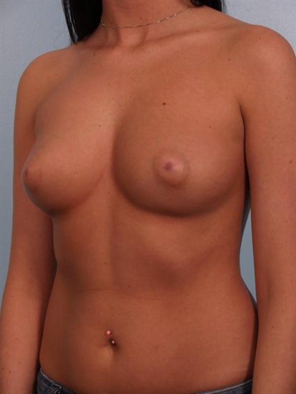 Breast Augmentation Gallery - Patient 1310018 - Image 3