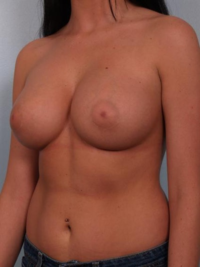 Breast Augmentation Gallery - Patient 1310018 - Image 4