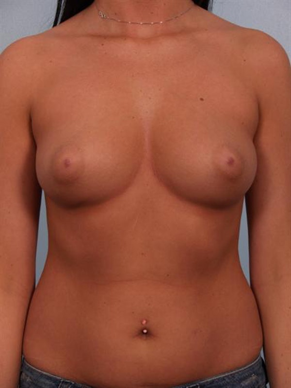 Breast Augmentation Gallery - Patient 1310018 - Image 5