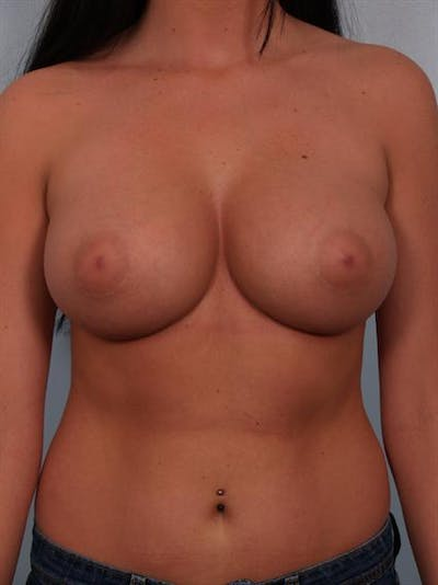 Breast Augmentation Gallery - Patient 1310018 - Image 6