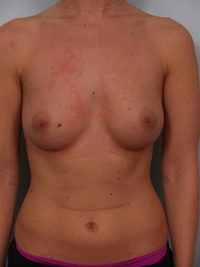 Breast Augmentation Gallery - Patient 1310021 - Image 1