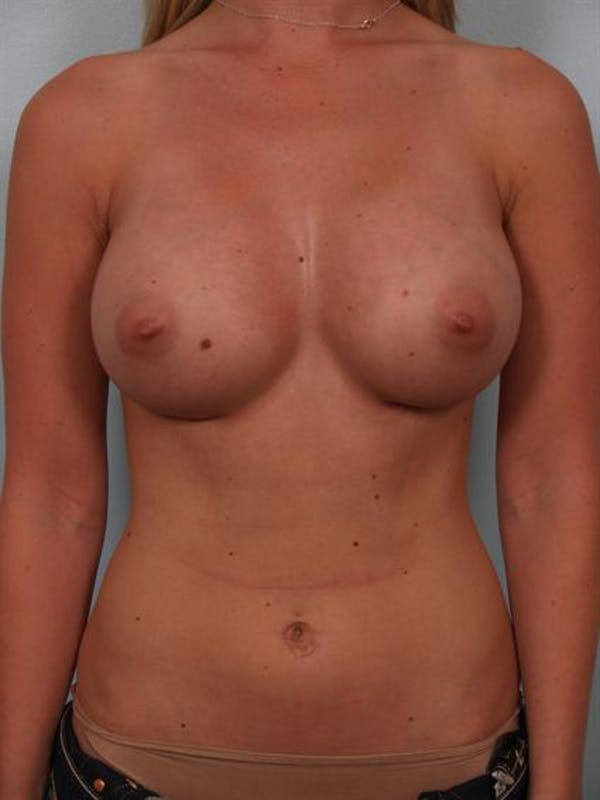 Breast Augmentation Gallery - Patient 1310021 - Image 2
