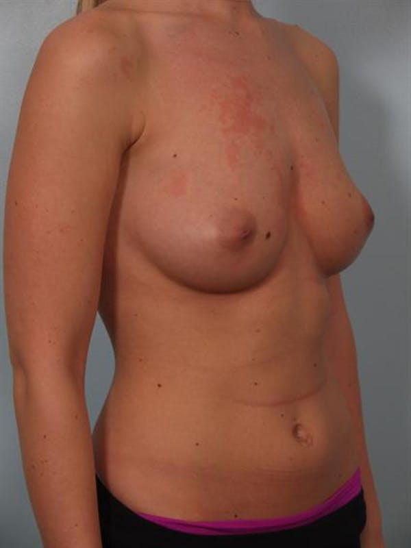 Breast Augmentation Gallery - Patient 1310021 - Image 3