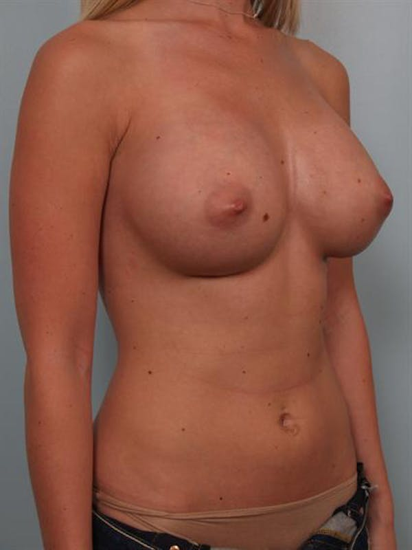 Breast Augmentation Gallery - Patient 1310021 - Image 4
